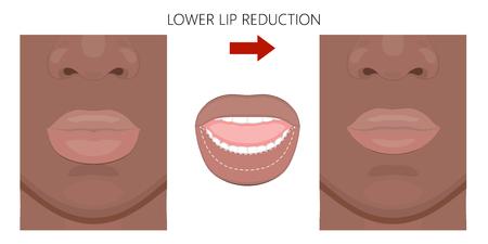 Vector illustratie. Afro-Amerikaanse onderlipverkleining voor, na de procedure. Close-up bekijken. Voor reclame voor cosmetische plastische ingrepen; voor medische en schoonheidspublicaties. EPS 10. Vector Illustratie