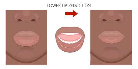 Vector illustration. African American lower lip reduction before, after procedure. Close up view. For advertising of cosmetic plastic procedures; for medical and beauty publications. EPS 10.