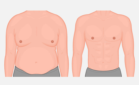 Vector illustration torso of a male before and after weight loss and sports. Front view. For medical publications and advertising of cosmetic, plastic procedures, stomach shunting, diet, sport. EPS 10 Illustration