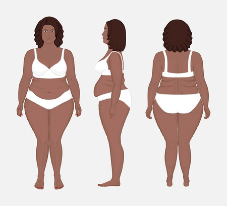 Vector illustration. Different views of African American woman in full growth in underwear. Advertising of cosmetic procedures, stomach shunting, bypass, diet, medical publications. EPS 10.