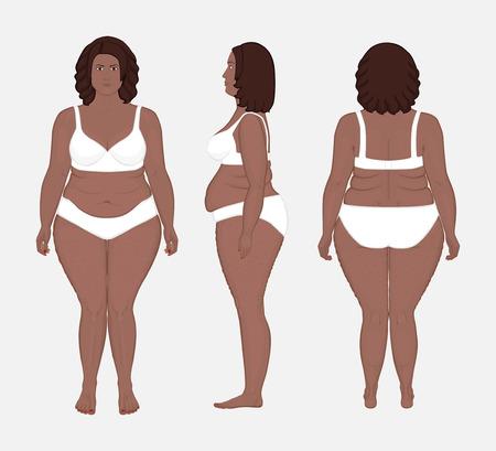 Ilustración vectorial. Diferentes puntos de vista de la mujer afroamericana en pleno crecimiento en ropa interior. Publicidad de procedimientos cosméticos, derivación de estómago, bypass, dieta, publicaciones médicas. EPS 10.