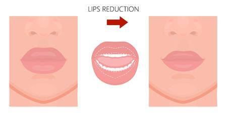 Illustrazione vettoriale. Riduzione del labbro superiore e inferiore prima, dopo la procedura. Vista ravvicinata. Per la pubblicità di procedure di plastica cosmetica; per pubblicazioni mediche e di bellezza. ENV 10.