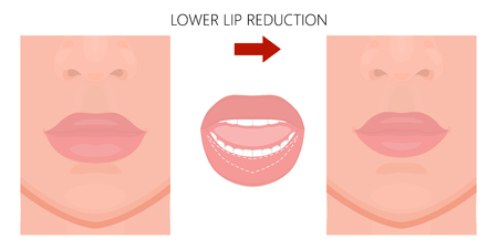 Vector illustration. Lower lip reduction before, after procedure. Close up view. For advertising of cosmetic plastic procedures; for medical and beauty publications. Vektoros illusztráció
