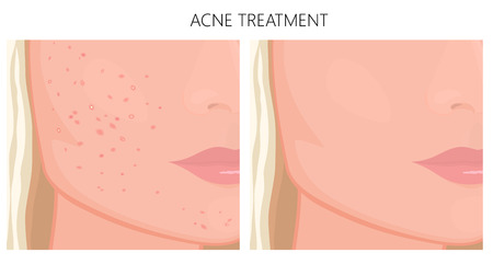 Vector illustration. Acne problem on face skin (cheeks, chin) before, after treatment. For placement on packaging of medicinal, pharmacy products, cream, lotion, cosmetic procedures advertising EPS 10 Illustration