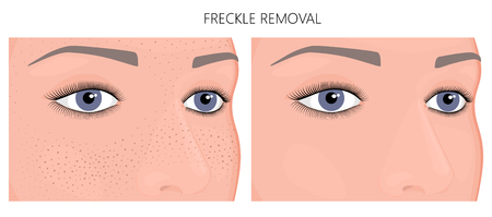 Vector illustration. Freckle removal on woman face (half turn) before, after cosmetic procedure. Close up view. For advertising of whitening medicinal, pharmacy products, cream, lotion. EPS 10. Ilustração