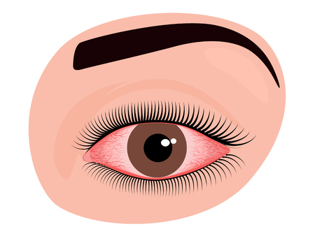 Vector illustration of irritated human eye with redness and blood vessels. For advertisement of drops and other medicines for eyes or medical publications. EPS 10.