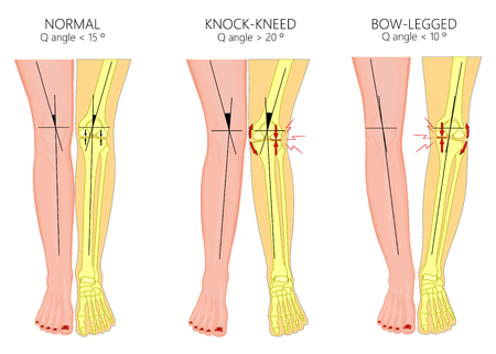 Vector illustration diagram. Shapes of human legs. Normal and curved legs. Knock knees. Bowed legs. Genu valgum and genu varum.  For advertising, medical publications. EPS 10.