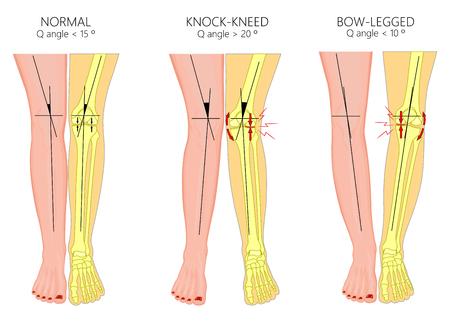 Vektor-Illustrationsdiagramm. Formen menschlicher Beine. Normale und gebogene Beine. Knie klopfen. Beugte Beine. Genu Valgum und Genu Varum. Für Werbung, medizinische Publikationen. EPS 10.
