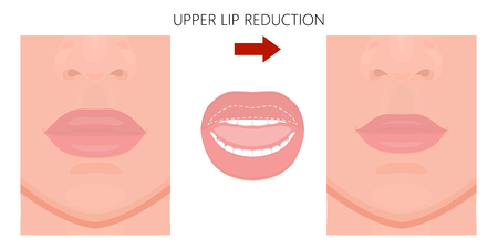 Vector illustration. Upper lip reduction before, after procedure. Close up view. For advertising of cosmetic plastic procedures; for medical and beauty publications. EPS 10.