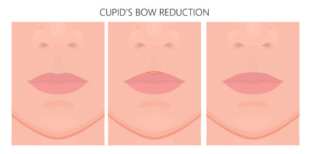 Vector illustration. Getting rid of upper lip Cupid's bow on face before, after aesthetic plastic surgery. Close up view. For advertising of medicinal, cosmetic, procedures. EPS 10.