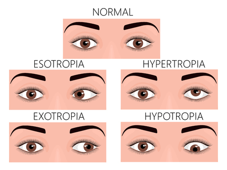 Vector illustration of normal human eyes and eyes with problem. Strabismus or crossed eyes types - esotropia, exotropia, hypertropia, hypotropia. For advertisement and medical publications. EPS 10. Çizim