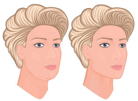 Vector illustration. A female face before, after plastic surgery - facial rejuvenation, face lift. Close up view. For advertising of cosmetological procedures, medical and beauty publications. EPS 10. Illustration