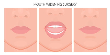 Vector illustration. Mouth widening surgery on face before, after procedure. Close up view. For advertising of medicinal, cosmetic, plastic surgery, procedures. EPS 10.
