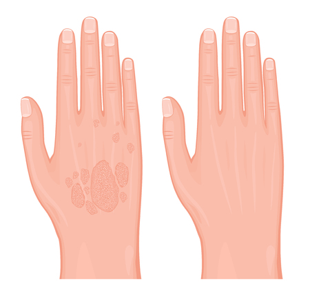 Vector illustration. Psoriasis on the skin of the hands before and after treatment. For advertising and medical publications. EPS 10.