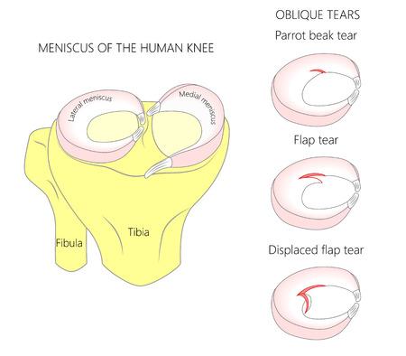 Ilustración de vector. Anatomía de un menisco en la articulación de la rodilla humana sana. Desgarros meniscales oblicuos con sección transversal de los meniscos. Para publicidad, publicaciones médicas. EPS 10.