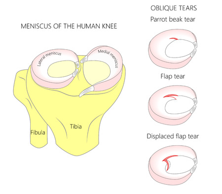 Vector illustration. Anatomy of a meniscus in the healthy human knee joint. Oblique meniscal tears with cross section of the menisci. For advertising, medical publications. EPS 10.