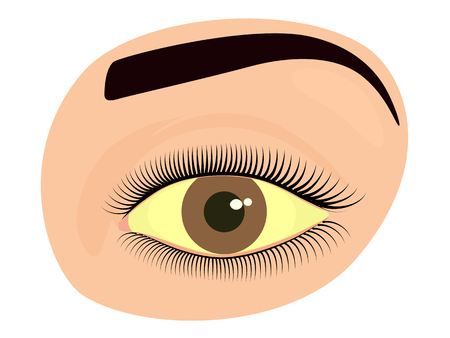 Vector illustration of a yellowed human eye as a symptom of hepatitis. For advertisement of drops and other medications, for medical publications. EPS 10.