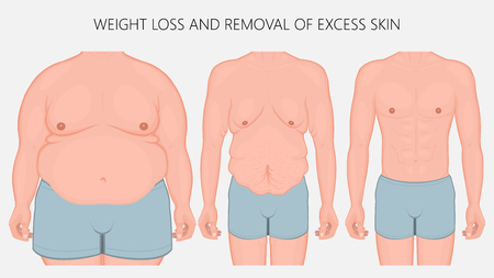 Vector illustration. Human body problem after Weight loss, excess skin  removal in man. Front view. For advertising of cosmetic plastic procedures, for medical publications. EPS 10