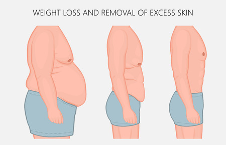 Vector illustration. Human body problem after Weight loss, excess skin removal in man. Side view. For advertising of cosmetic plastic procedures, for medical publications. EPS 10