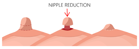 Vector illustration of the long nipple reduction before and after plastic surgery. Side view (close up) of the woman breast. For advertising and medical publications. EPS 10.