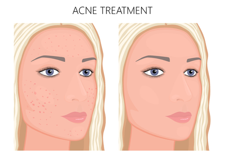 Vector illustration. Acne problem on face skin before and after treatment. For advertising  and placement on packaging of medicinal, pharmacy products, cream, lotion, cosmetic procedures. EPS 10.