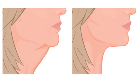 Vector illustration. A female face before, after plastic surgery - facial rejuvenation, face lift. Close up view. For advertising of cosmetological procedures, medical and beauty publications. EPS 10. Ilustração