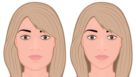 Vector illustration. A young white female face before and after plastic surgery - jaw reduction. Frontal view. For advertising of plastic surgery, medical and beauty publications. EPS 10.