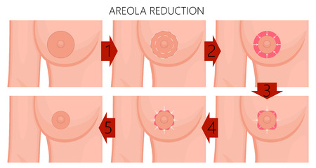 Vector illustration of the large areola reduction before and after plastic surgery. Front view (close up) of a young woman breast. For advertising of plastic surgery and medical publications. EPS 10.