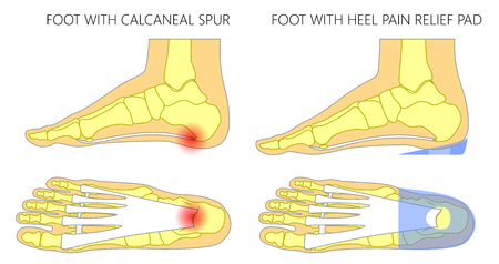 Vector illustration. Human foot with calcaneal spur, plantar fasciitis problem before, after heel pain relief pad. Medial, side and plantar view of a foot. For medical publications. EPS 10 Illustration