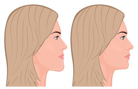 Vector illustration. A young white female face before and after plastic surgery - jaw reduction. Face profile. For advertising of plastic surgery, medical and beauty publications. EPS 10.
