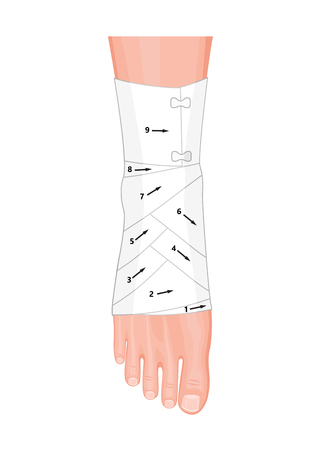 Correct way to wrap an ankle by flexible elastic supportive orthopedic bandage (sprain, strain).