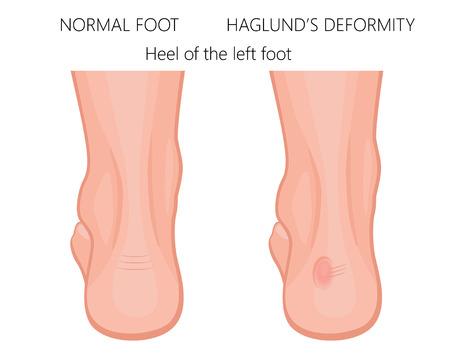 Ilustración vectorial del pie con talón normal y el pie con deformidad de Haglund y bursitis. Para publicaciones médicas. EPS 10