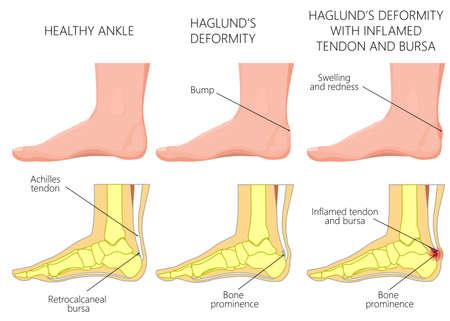 Illustration d'une cheville (vue latérale) avec une déformation de Haglund, une inflammation du tendon d'Achille et une bursite. Pour les publications médicales. EPS 10 Vecteurs