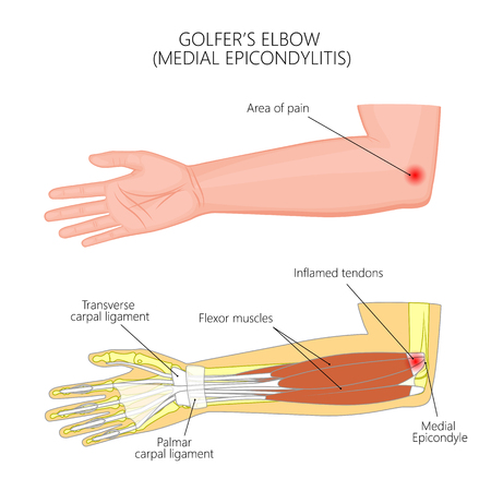 Illustration of Medial Epicondylitis or golfers elbow.  Used: Gradient, transparency, blend mode. For medical publications. EPS 10 일러스트