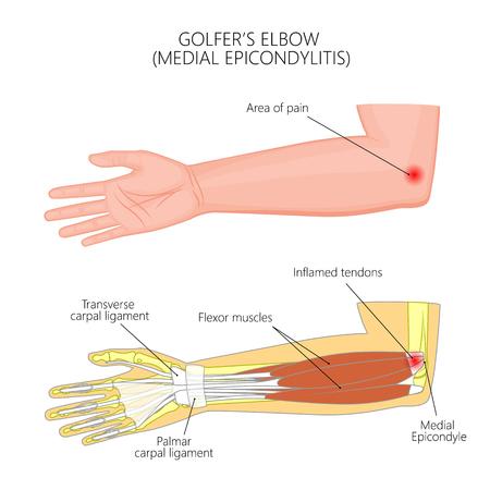 Illustrazione dell'epicondilite mediale o del gomito del giocatore di golf. Usato: sfumatura, trasparenza, modalità di fusione. Per pubblicazioni mediche. EPS 10