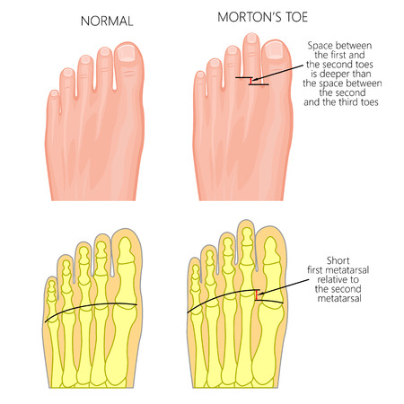 Vector illustration of foot - normal and with Morton's toe or Morton's Foot Syndrome, short first metatarsal bone relative to the second metatarsal. Top view of forefoot and  and skeleton of forefoot. Illustration