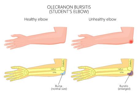 Illustration of Olecranon bursitis or student's elbow. For medical publications. EPS 10