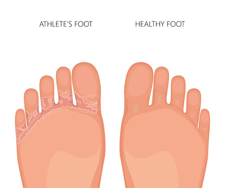 Illustration of Athlete's foot or tinea pedis (soles of the feet) with damaged skin between and under the toes. For medical publications. EPS 10. Vektorové ilustrace