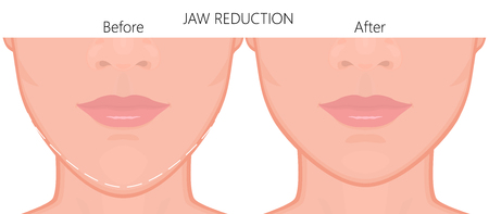illustration. A young  female face before and after plastic surgery - jaw reduction. Close up view. For advertising of plastic surgery, medical and beauty publications. Illustration