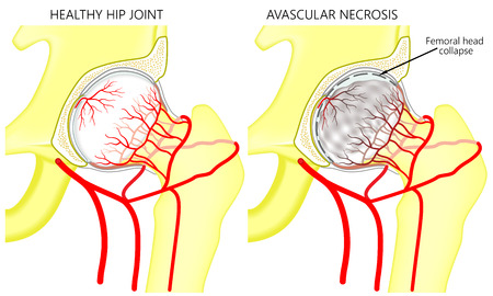 Vector illustration anatomy of a healthy human hip joint and a hip with avascular necrosis of the femoral head. Front view. For advertising and medical publications. EPS 10.