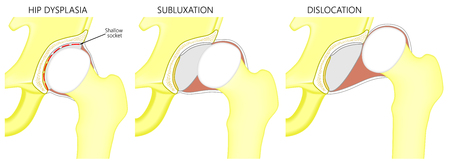 Vector illustration anatomy of a hip joint with dysplasia, subluxation and dislocation of the femoral head in the joint . Front view. For advertising and medical publications. EPS 10.