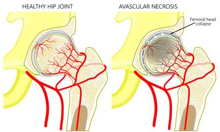 Anatomía de la ilustración vectorial de una articulación de la cadera humana sana y una cadera con necrosis avascular de la cabeza femoral. Vista frontal. Para publicidad y publicaciones médicas. EPS 10.