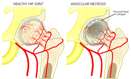 Vector illustratie anatomie van een gezond menselijk heupgewricht en een heup met avasculaire necrose van de heupkop. Vooraanzicht. Voor reclame en medische publicaties. EPS-10.