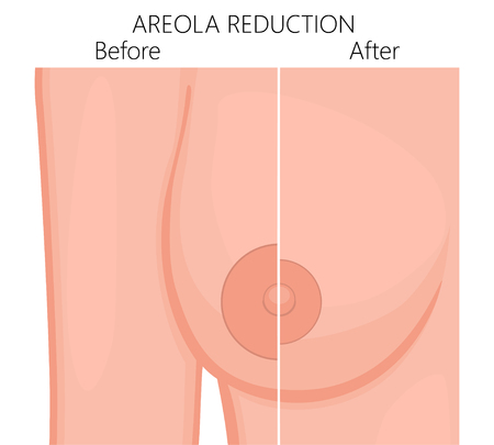 Vector illustration of the large areola reduction before and after plastic surgery. Front view (close up) of a young woman breast. For advertising of plastic surgery and medical publications.