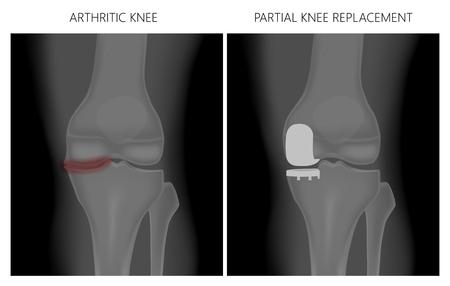 Illustrazione vettoriale. Anatomia, radiografia anteriore di un'articolazione del ginocchio artritica e di un ginocchio dopo sostituzione monocompartimentale o parziale del ginocchio. Per pubblicità e pubblicazioni mediche.