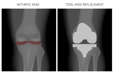 Vector illustration. Anatomy, front x-ray of an arthritic knee joint and a knee after total knee replacement. For advertising and medical publications. EPS 10. Stok Fotoğraf - 127163706