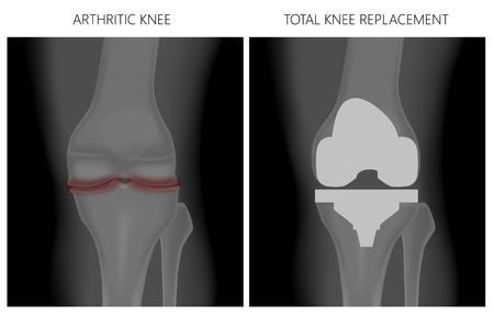 Vektor-Illustration. Anatomie, Frontröntgenbild eines arthritischen Kniegelenks und eines Knies nach Knie-Totalendoprothese. Für Werbung und medizinische Publikationen. EPS 10. Vektorgrafik