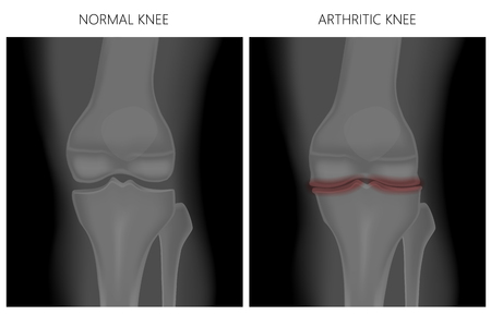Vector illustration. Anatomy, front x-ray of a healthy knee joint and an arthritic knee. For advertising and medical publications. EPS 10.