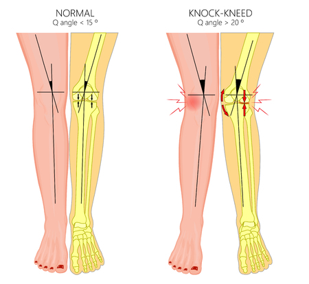 Vector illustration diagram. Shapes of human legs. Normal and curved legs. Knock knees.  Genu valgum and genu varum.  For advertising, medical publications.