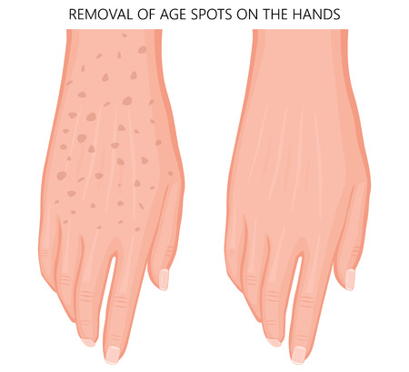 Vector illustration of a human hand with age spots before and after removal. Dorsal view. For advertising, medical publications. EPS 10